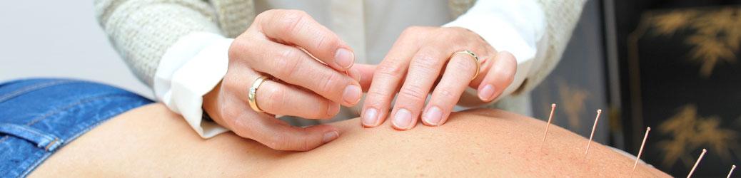 akupunktur2